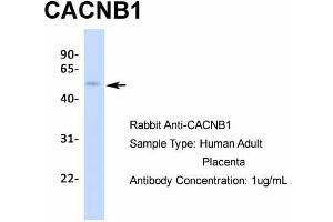 Image no. 5 for anti-Calcium Channel, Voltage-Dependent, beta 1 Subunit (CACNB1) (N-Term) antibody (ABIN2776092)