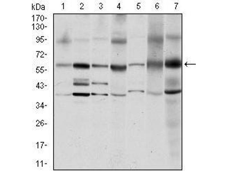 Western Blotting (WB) image for anti-V-Src Sarcoma (Schmidt-Ruppin A-2) Viral Oncogene Homolog (Avian) (SRC) antibody (ABIN969418)