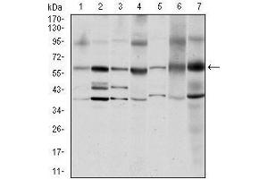 Image no. 1 for anti-Proto-oncogene tyrosine-protein kinase Src (Src) antibody (ABIN969418)