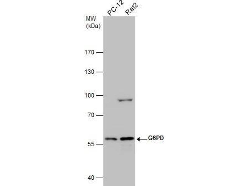 Western Blotting (WB) image for anti-Glucose-6-Phosphate Dehydrogenase (G6PD) (Center) antibody (ABIN2854975)