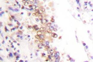 Immunohistochemistry (Paraffin-embedded Sections) (IHC (p)) image for anti-Protein Inhibitor of Activated STAT, 1 (PIAS1) antibody (ABIN407959)