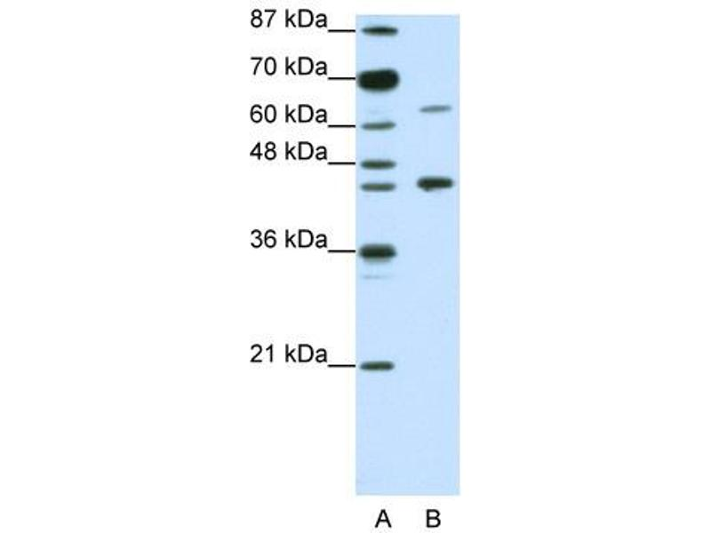 Western Blotting (WB) image for anti-Retinoic Acid Receptor alpha antibody (Retinoic Acid Receptor, alpha) (N-Term) (ABIN183927)