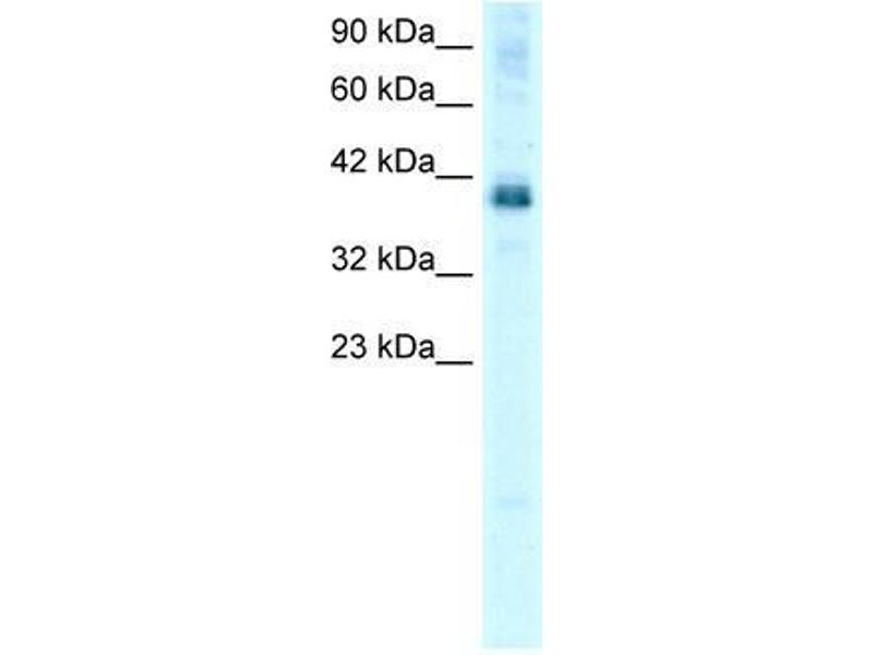 Western Blotting (WB) image for anti-TSC22D4 antibody (TSC22 Domain Family, Member 4) (N-Term) (ABIN1109360)