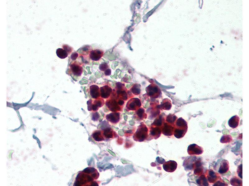 Immunohistochemistry (IHC) image for anti-Neutrophil Cytosol Factor 1 (NCF1) (AA 378-390) antibody (ABIN337093)