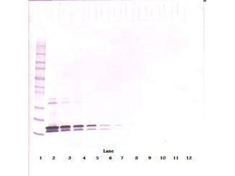 image for anti-Tumor Necrosis Factor (Ligand) Superfamily, Member 13b (TNFSF13B) antibody (ABIN1496804)