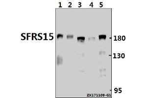 Image no. 1 for anti-SR-Related CTD-Associated Factor 4 (SCAF4) (AA 611-660) antibody (ABIN6713538)