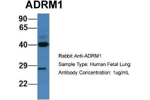 Image no. 3 for anti-Adhesion Regulating Molecule 1 (Adrm1) (C-Term) antibody (ABIN2788040)