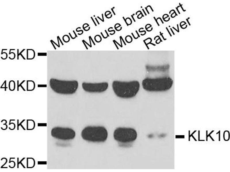 Western Blotting (WB) image for anti-Kallikrein 10 (KLK10) antibody (ABIN2969141)