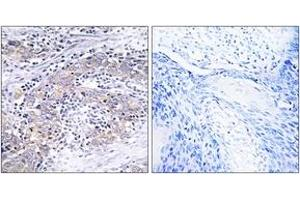 Image no. 2 for anti-Ceroid-Lipofuscinosis, Neuronal 6, Late Infantile, Variant (CLN6) (AA 221-270) antibody (ABIN1534764)