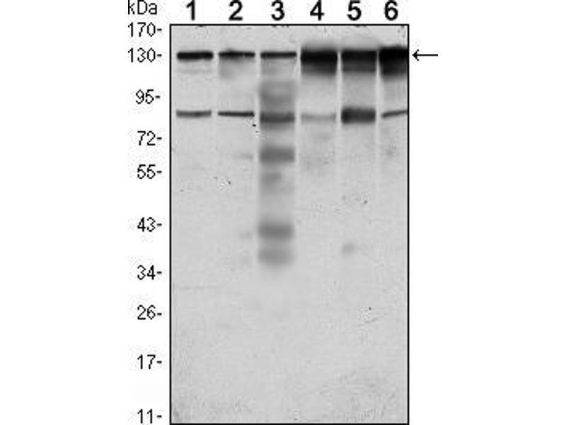 Western Blotting (WB) image for anti-PTK7 Protein tyrosine Kinase 7 (PTK7) antibody (ABIN969374)