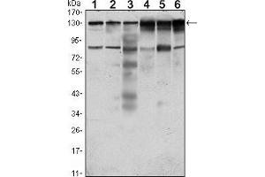 Western Blotting (WB) image for anti-PTK7 antibody (PTK7 Protein tyrosine Kinase 7) (ABIN969374)