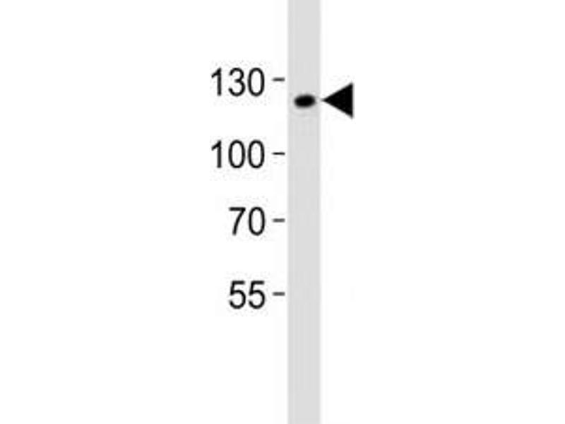 Western Blotting (WB) image for anti-SIRT1 antibody (Sirtuin 1) (AA 566-601) (ABIN3032583)