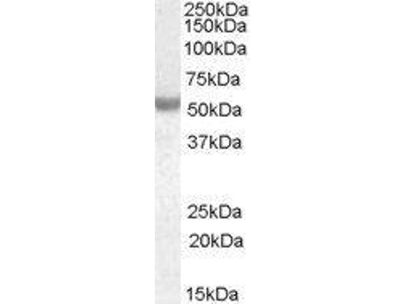 Western Blotting (WB) image for Neuro-Oncological Ventral Antigen 1 (NOVA1) peptide (ABIN369762)