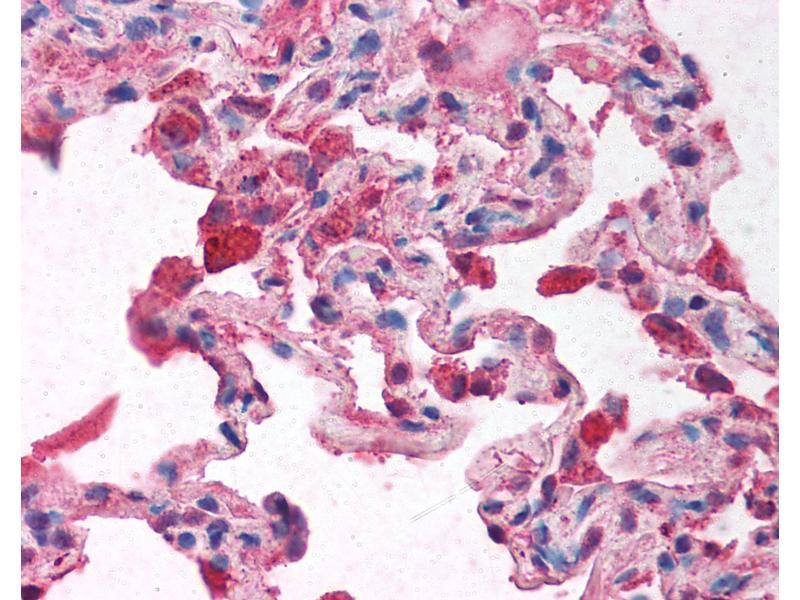 Immunohistochemistry (IHC) image for anti-Nuclear Receptor Co-Repressor 2 (NCOR2) (AA 511-560) antibody (ABIN214126)