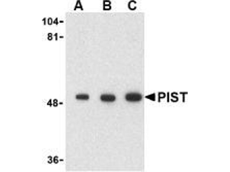 Western Blotting (WB) image for anti-Golgi-Associated PDZ and Coiled-Coil Motif Containing (GOPC) (C-Term) antibody (ABIN497983)
