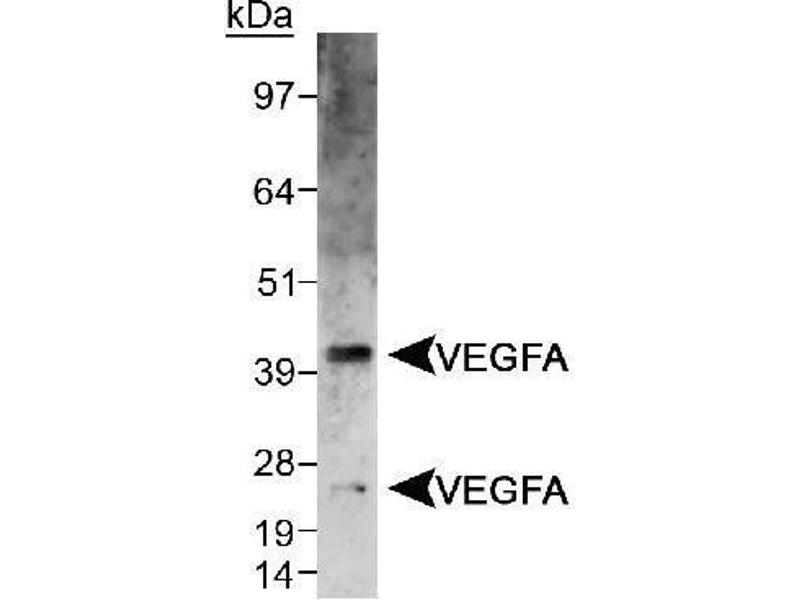 image for anti-VEGF antibody (Vascular Endothelial Growth Factor A) (Internal Region) (ABIN1740638)