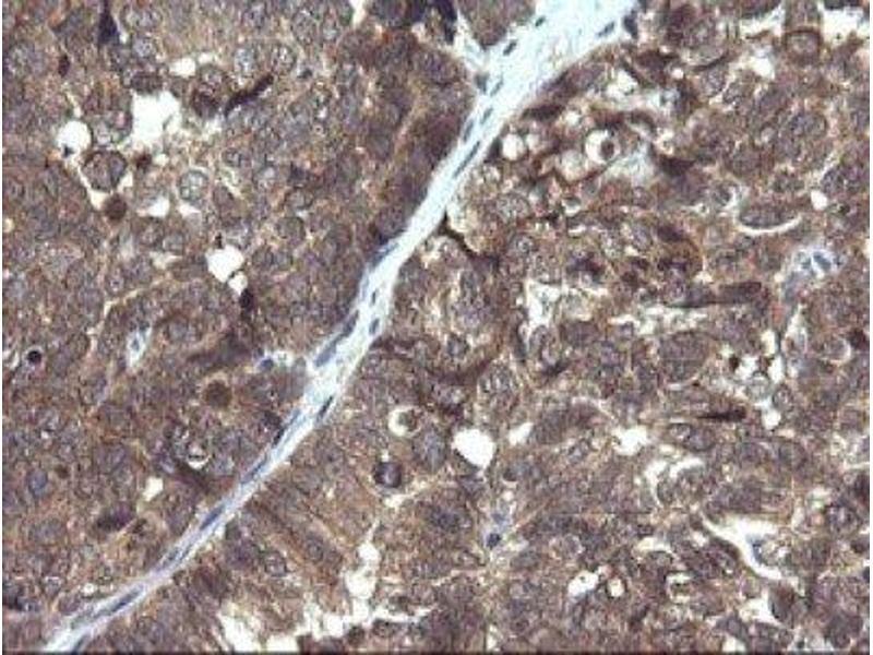 Immunohistochemistry (IHC) image for anti-PIK3R5 Antikörper (Phosphoinositide-3-Kinase, Regulatory Subunit 5) (ABIN4345601)