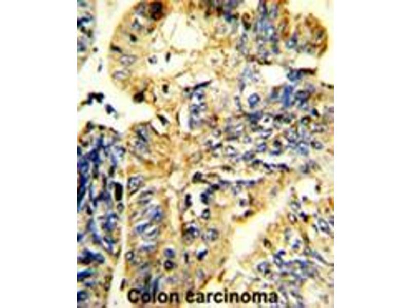 Immunohistochemistry (Paraffin-embedded Sections) (IHC (p)) image for anti-LIF antibody (Leukemia Inhibitory Factor) (AA 79-109) (ABIN453168)