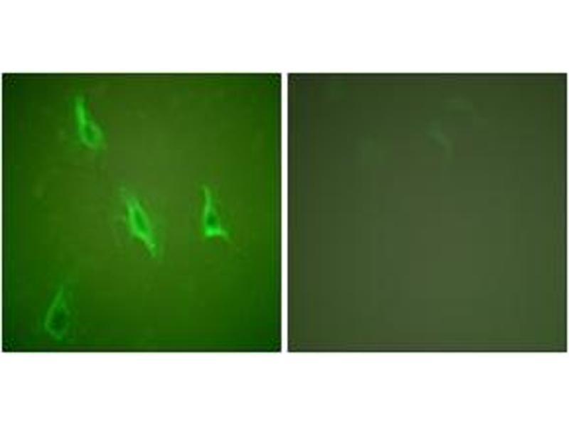 Immunofluorescence (IF) image for anti-Caspase 10 antibody (Caspase 10, Apoptosis-Related Cysteine Peptidase) (ABIN1533218)