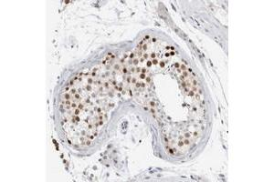 Image no. 2 for anti-Cancer Susceptibility Candidate 5 (CASC5) antibody (ABIN5573743)