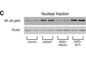 Image no. 14 for anti-Proliferating Cell Nuclear Antigen (PCNA) (Center) antibody (ABIN2854788)
