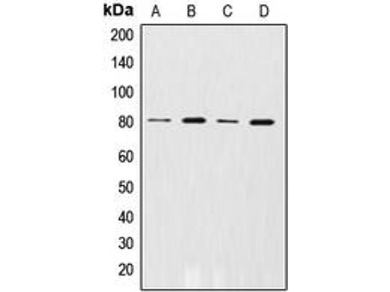 Western Blotting (WB) image for anti-Adrenergic, Beta, Receptor Kinase 1 (ADRBK1) (N-Term), (pSer29) antibody (ABIN2707537)