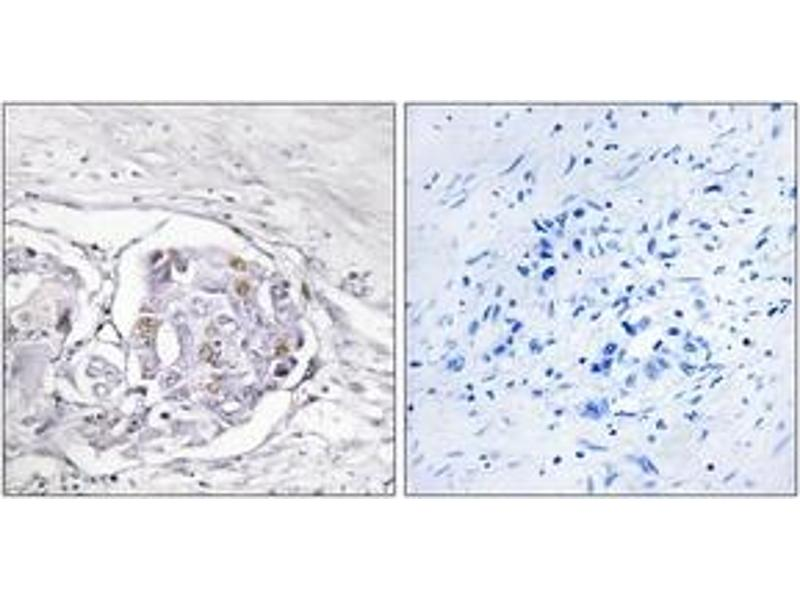 Immunohistochemistry (IHC) image for anti-Progesterone Receptor (PGR) (AA 261-310) antibody (ABIN1532399)