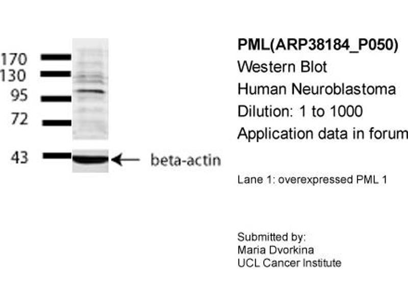 Western Blotting (WB) image for anti-PML antibody (Promyelocytic Leukemia) (Middle Region) (ABIN2778427)