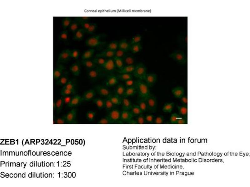 Image no. 2 for anti-ZEB1 antibody (Zinc Finger E-Box Binding Homeobox 1) (N-Term) (ABIN486932)