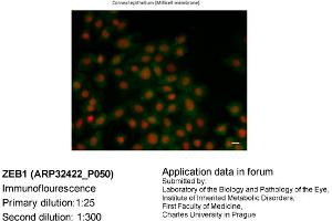 Image no. 2 for anti-Zinc Finger E-Box Binding Homeobox 1 (ZEB1) (N-Term) antibody (ABIN2779631)