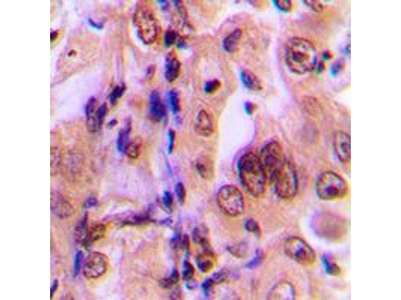Immunohistochemistry (IHC) image for anti-MAP2K1 antibody (Mitogen-Activated Protein Kinase Kinase 1) (pSer292) (ABIN2706545)