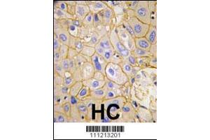 Immunohistochemistry (IHC) image for anti-Platelet-Derived Growth Factor Receptor, alpha Polypeptide (PDGFRA) (AA 732-761), (Tyr754) antibody (ABIN392029)