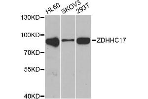Image no. 1 for anti-Zinc Finger, DHHC-Type Containing 17 (ZDHHC17) antibody (ABIN2560820)