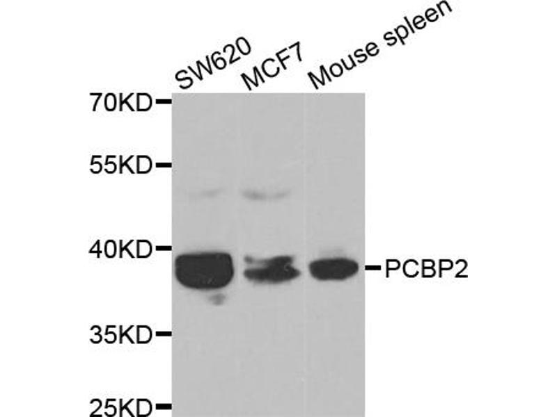 Image no. 1 for anti-Poly(rC) Binding Protein 2 (PCBP2) antibody (ABIN6569256)