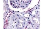 Immunohistochemistry (IHC) image for anti-ERBB4 antibody (V-Erb-A erythroblastic Leukemia Viral Oncogene Homolog 4 (Avian)) (Internal Region) (ABIN2469360)