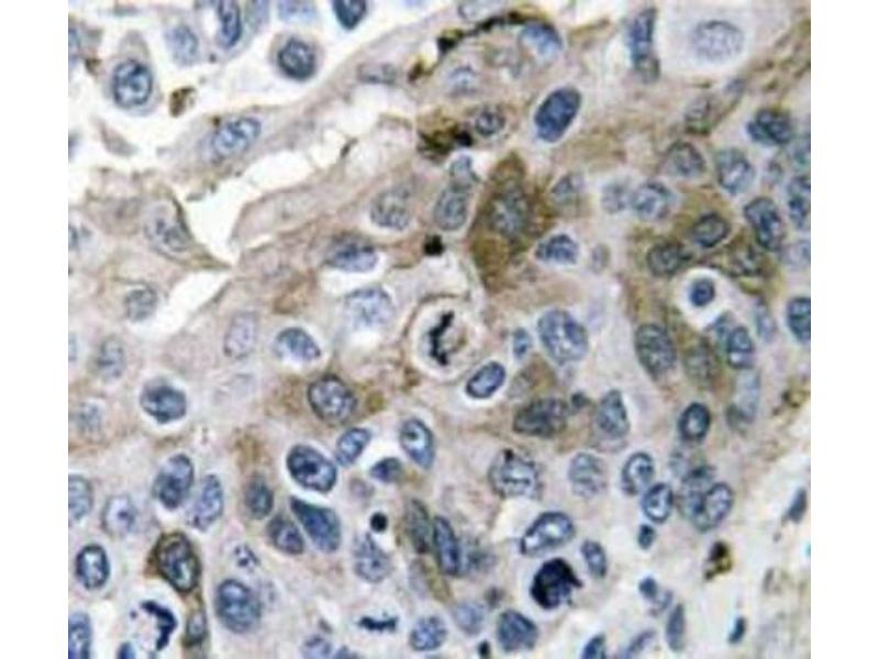 Immunohistochemistry (IHC) image for anti-IL1B antibody (Interleukin 1, beta) (Internal Region) (ABIN446969)