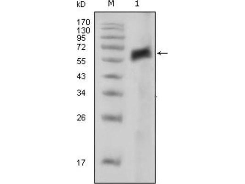 Western Blotting (WB) image for anti-AXL Receptor tyrosine Kinase (AXL) antibody (ABIN1842897)