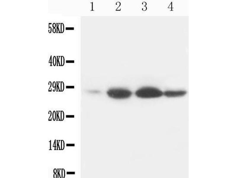 Western Blotting (WB) image for anti-B-Cell CLL/lymphoma 2 (BCL2) (AA 41-54) antibody (ABIN3044481)