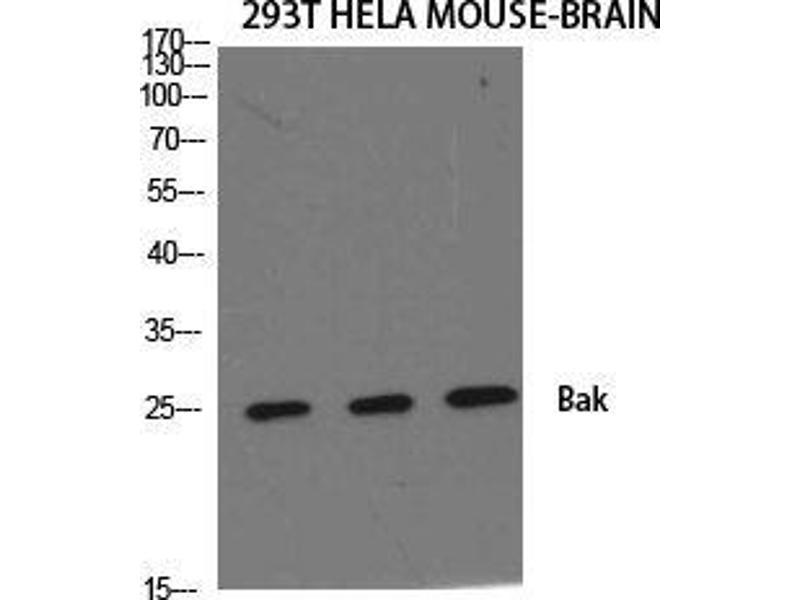 Western Blotting (WB) image for anti-BCL2-Antagonist/killer 1 (BAK1) (N-Term) antibody (ABIN3183478)