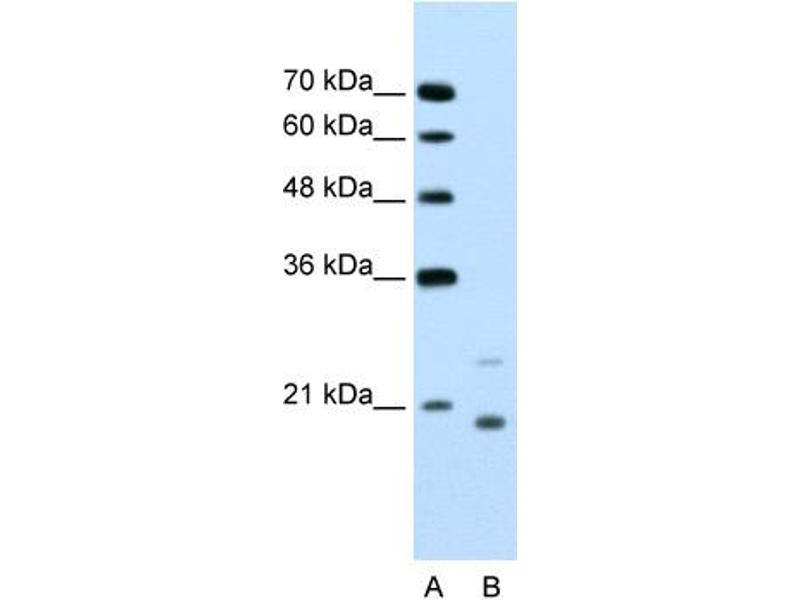 Western Blotting (WB) image for anti-Ubiquitin-Conjugating Enzyme E2D 1 (UBE2D1) (Middle Region) antibody (ABIN2775671)