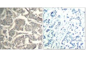 image for anti-Cofilin 1 (Non-Muscle) (CFL1) (Tyr88) antibody (ABIN319381)