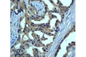 Immunohistochemistry (IHC) image for anti-MAP3K5 antibody (Mitogen-Activated Protein Kinase Kinase Kinase 5) (N-Term) (ABIN189046)