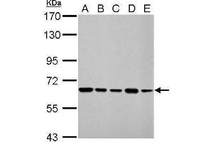 Western Blotting (WB) image for anti-Apoptosis-Inducing Factor, Mitochondrion-Associated, 1 (AIFM1) (N-Term) antibody (ABIN2855383)