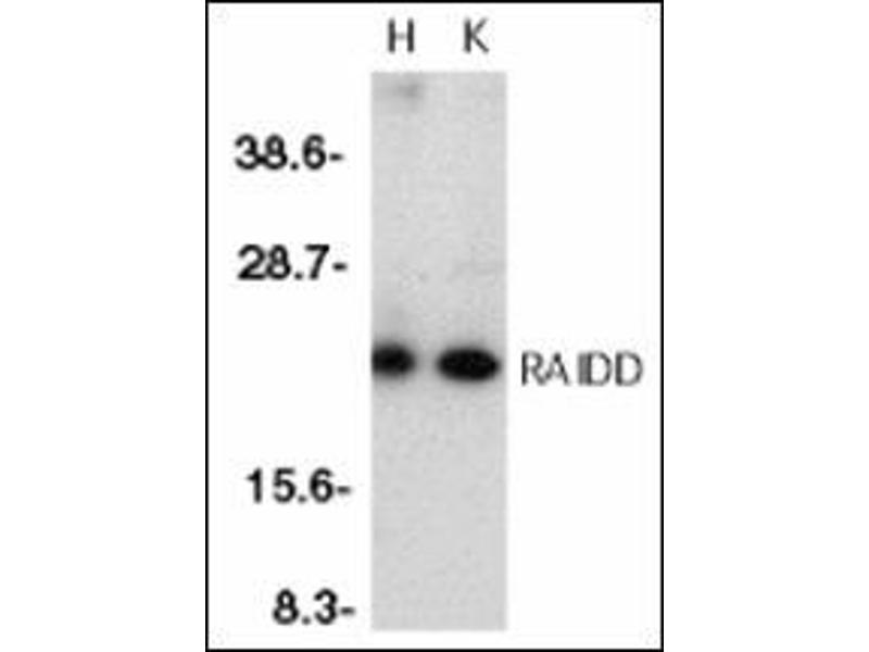 Western Blotting (WB) image for anti-CRADD antibody (CASP2 and RIPK1 Domain Containing Adaptor with Death Domain) (AA 99-117) (ABIN500561)