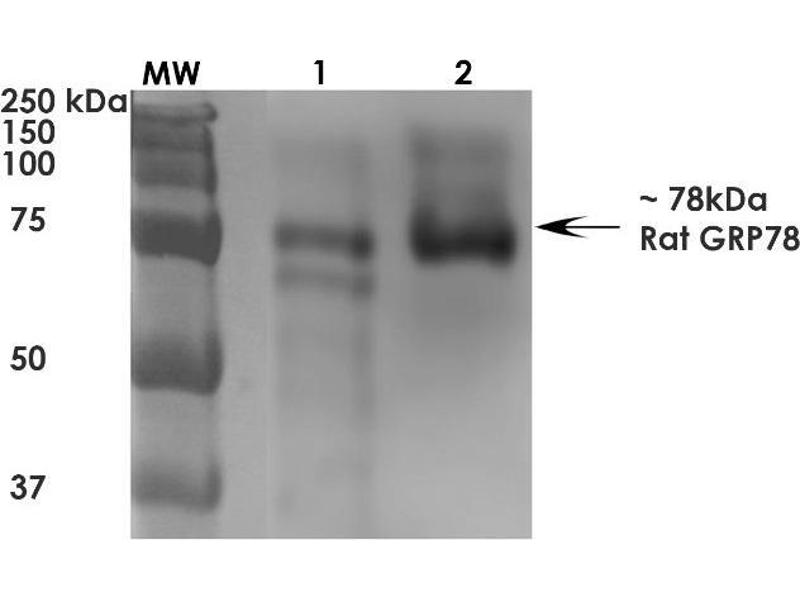 Heat Shock 70kDa Protein 5 (Glucose-Regulated Protein, 78kDa) (HSPA5) ELISA Kit