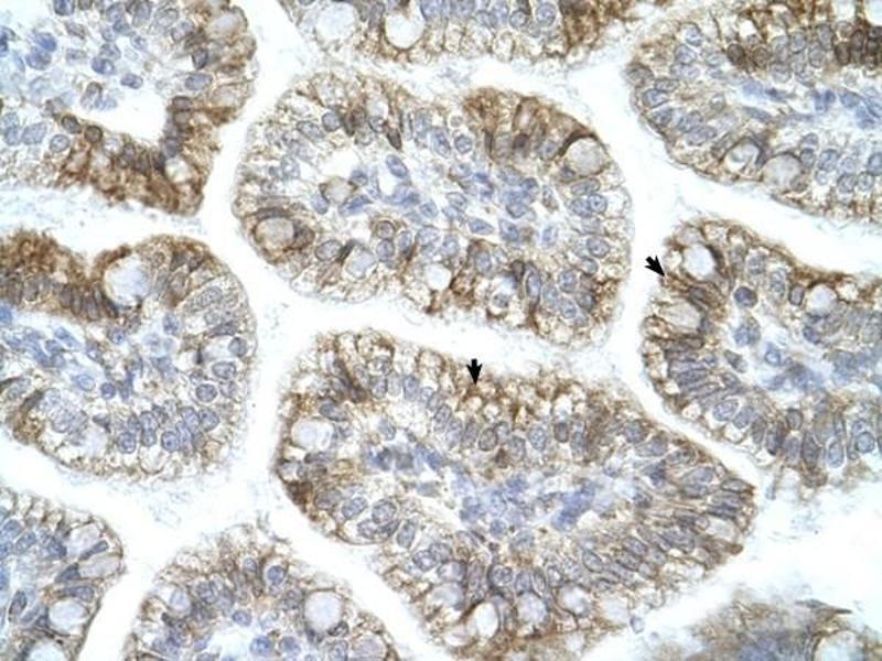 Immunohistochemistry (IHC) image for anti-Amyloid beta (A4) Precursor Protein-Binding, Family A, Member 1 (APBA1) (N-Term) antibody (ABIN926979)