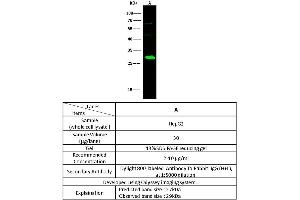 Image no. 1 for anti-Dicarbonyl/L-Xylulose Reductase (DCXR) (AA 1-244) antibody (ABIN2691955)
