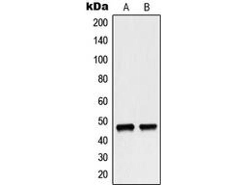 Western Blotting (WB) image for anti-NCF1 antibody (Neutrophil Cytosol Factor 1) (C-Term) (ABIN2705087)
