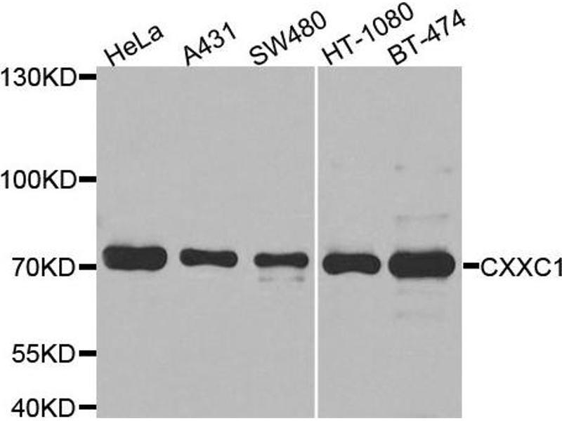 Image no. 2 for anti-CXXC Finger Protein 1 (CXXC1) antibody (ABIN2562080)