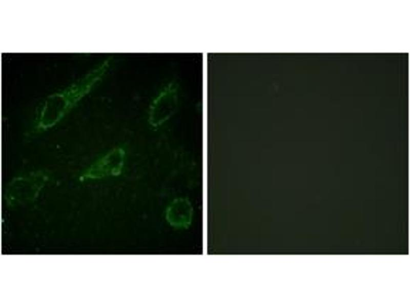Immunofluorescence (IF) image for anti-ABL1 antibody (C-Abl Oncogene 1, Non-Receptor tyrosine Kinase) (pTyr245) (ABIN1531424)